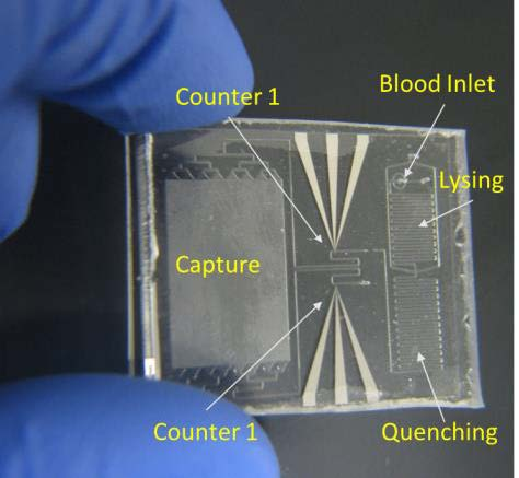 The disposable chip is low-cost and can analyze a drop of blood without any preparation.